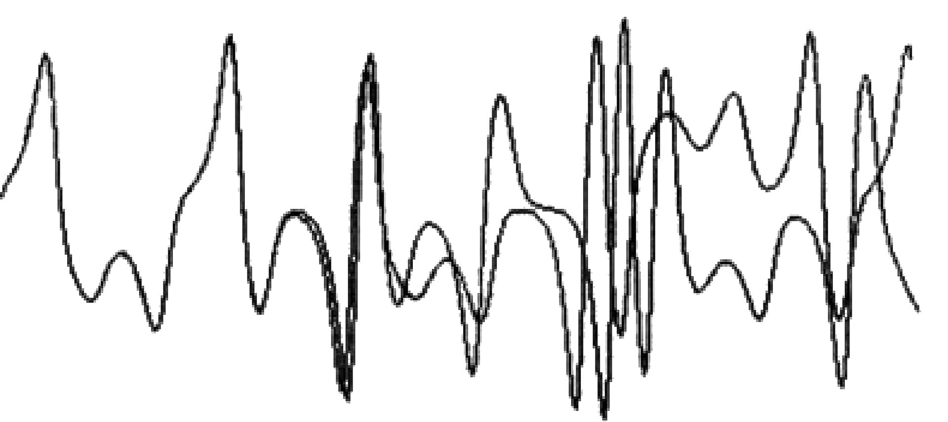 """Figure 1: Lorenz's experiment: the difference between <br> the starting values of these curves is only .000127 <br> (Ian Stewart, """"Does God Play Dice?""""  <em> The Mathematics of Chaos, </em>pg. 141)"""